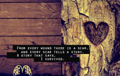 my scar story How the physical can mirror the emotional: my scar story the first thing he asked me during intake was where i have scars on my join the organic olivia.